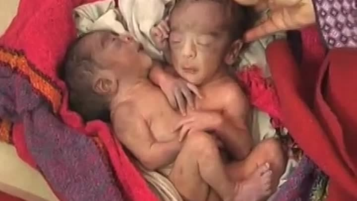 Видео: Miracle Baby born with 2 heads, 4 arms and 2 legs, in India